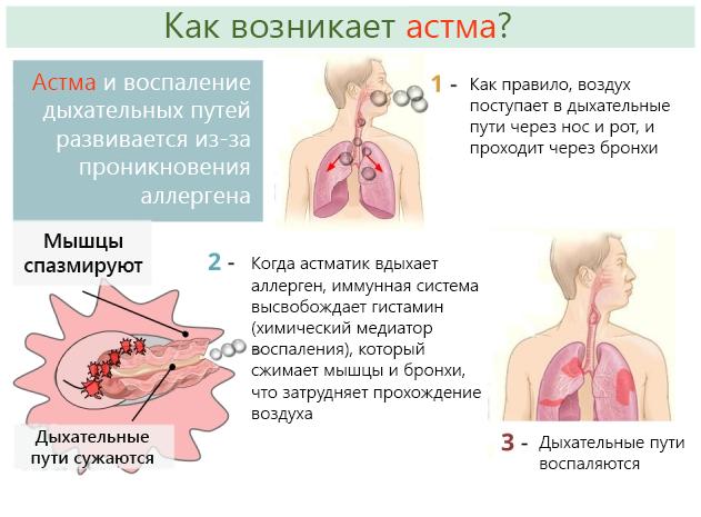 Неотложная помощь при бронхиальной астме у беременной