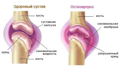 Книгм про суставы и хрящи гонартроз 2 степени коленного сустава лечение гимнастика