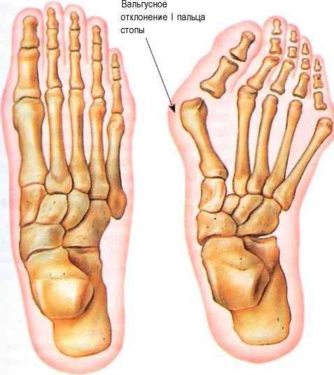 Что делать если болят косточки на ногах