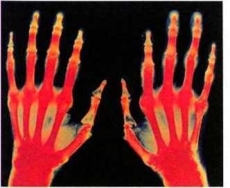 Изображение - Хроническое заболевание суставов rentgenartrit